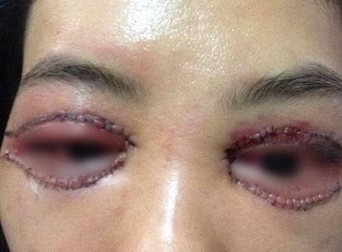 Phẫu thuật cắt mí mắt dưới An Toàn cho đôi mắt TRẺ ĐẸP hài hòa 3