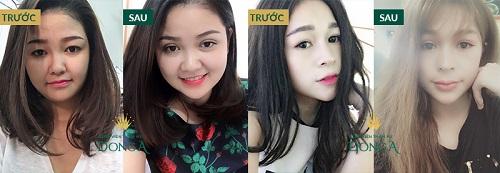Cắt mí mắt ở đâu đẹp - AN TOÀN & UY TÍN nhất Hà Nội, TPHCM? 6