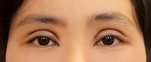 Cắt mí mắt quá to - Nguyên nhân & Giải pháp tái phẫu thuật An Toàn 2