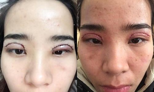 Cắt mí mắt quá to - Nguyên nhân & Giải pháp tái phẫu thuật An Toàn 5