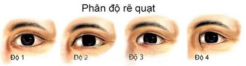 Cắt mí mở rộng khóe mắt - Sự kết hợp cho đôi mắt HÀI HÒA 2