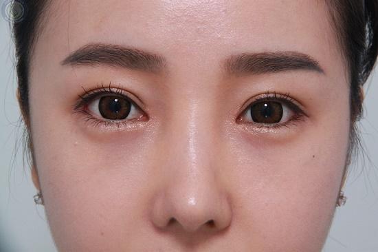 Hình ảnh cắt mí mắt sau 1 tuần, 1 tháng, 2 tháng sẽ thay đổi như thế nào? 11