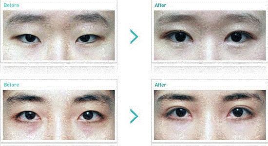 Hình ảnh cắt mí mắt sau 1 tuần, 1 tháng, 2 tháng sẽ thay đổi như thế nào? 1