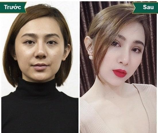 Hình ảnh cắt mí mắt sau 1 tuần, 1 tháng, 2 tháng sẽ thay đổi như thế nào? 8
