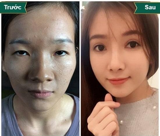 Hình ảnh cắt mí mắt sau 1 tuần, 1 tháng, 2 tháng sẽ thay đổi như thế nào? 3
