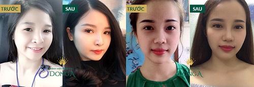 Cắt mí tại Vinh Nghệ An - Chia sẻ từ cô nàng mắt xấu về địa chỉ uy tín nhất 9