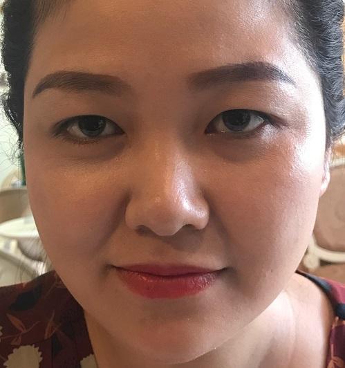 Cắt mí tại Vinh Nghệ An - Chia sẻ từ cô nàng mắt xấu về địa chỉ uy tín nhất 1