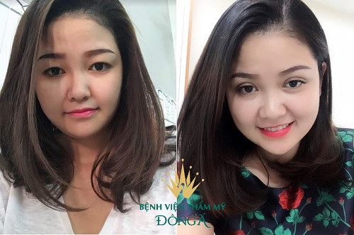 Cắt mí tại Vinh Nghệ An - Chia sẻ từ cô nàng mắt xấu về địa chỉ uy tín nhất 8