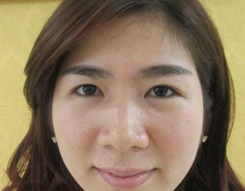 Cắt mí mở rộng khóe mắt - Sự kết hợp cho đôi mắt HÀI HÒA 3