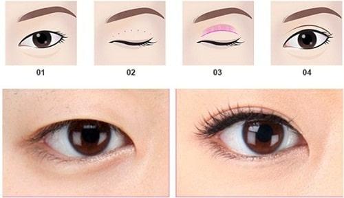 Cắt mí mở rộng khóe mắt - Sự kết hợp cho đôi mắt HÀI HÒA 5