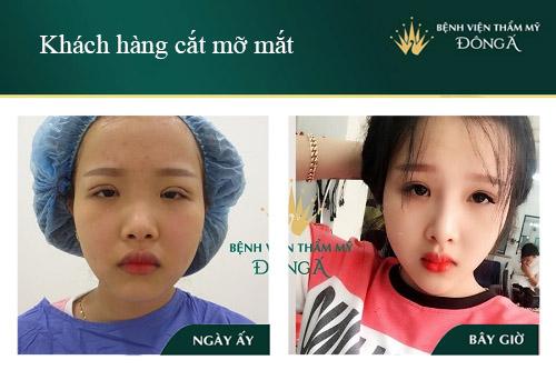 Công nghệ cắt mỡ mí mắt An Toàn - Hiện Đại giúp đôi mắt Trẻ Đẹp 8
