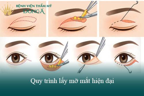 Công nghệ cắt mỡ mí mắt An Toàn - Hiện Đại giúp đôi mắt Trẻ Đẹp 3