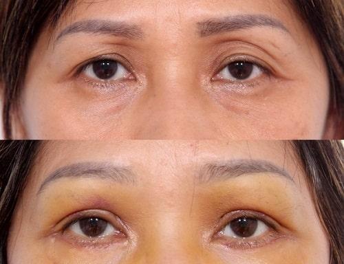"""Cấy mỡ trẻ hóa toàn diện vùng hốc mí mắt """"tái sinh"""" 10 năm thanh xuân 4"""