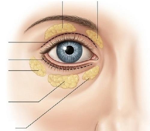 """Cấy mỡ trẻ hóa toàn diện vùng hốc mí mắt """"tái sinh"""" 10 năm thanh xuân 1"""