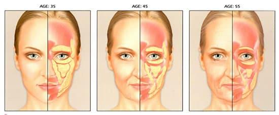 Cấy ghép mỡ mắt phù hợp với nhiều đối tượng