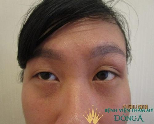 Chi phí phẫu thuật mắt to mắt nhỏ giá bao nhiêu để mắt Cân Đối trẻ đẹp 1