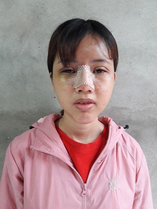 """Chia sẻ kinh nghiệm cắt mí mắt của """"Thị Nở thời hiện đại"""" Cao Thị Oanh 5"""