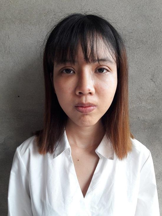 """Chia sẻ kinh nghiệm cắt mí của """"Thị Nở thời hiện đại"""" Cao Thị Oanh 7"""
