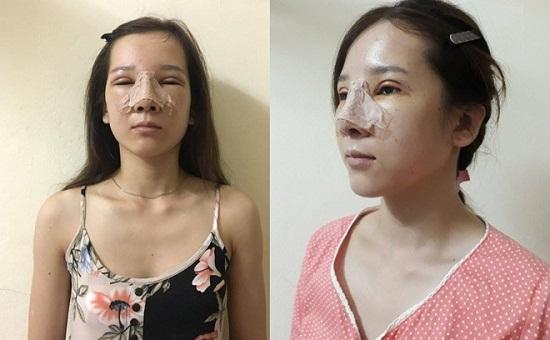 """""""Cô gái mắt lươn""""- Lương Thị Hà hành trình lột xác ngoạn mục thay đổi cuộc đời 7"""