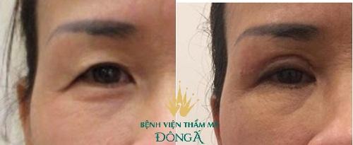 Có nên cắt da thừa mí mắt? Chuyên gia thẩm mỹ hàng đầu giải đáp 3