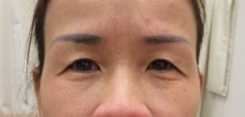 Có nên cắt da thừa mí mắt? Chuyên gia thẩm mỹ hàng đầu giải đáp 2