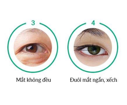 Có nên mở góc mắt không? Những lưu ý trước và sau khi mở góc mắt 3