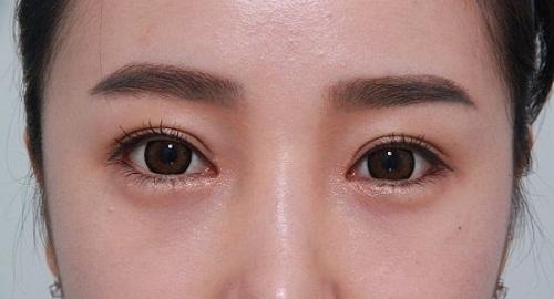 Xem tướng con gái mắt một mí để biết những THÚ VỊ về mắt 1 mí nữ 2