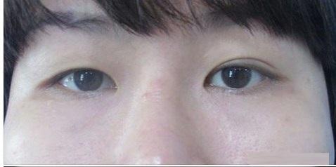 Đàn ông mắt to mắt nhỏ nói lên điều gì, đẹp hay xấu, khắc phục ra sao 3