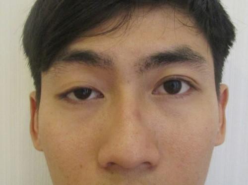 Đàn ông mắt to mắt nhỏ nói lên điều gì, đẹp hay xấu, khắc phục ra sao 1