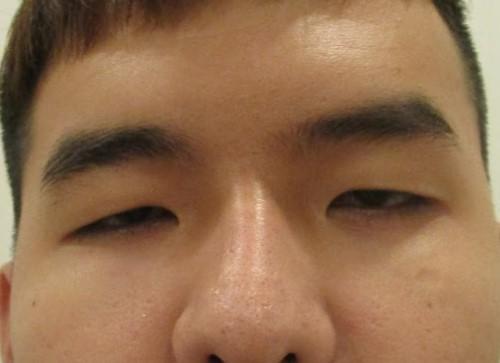 Đàn ông mắt to mắt nhỏ nói lên điều gì, đẹp hay xấu, khắc phục ra sao 2