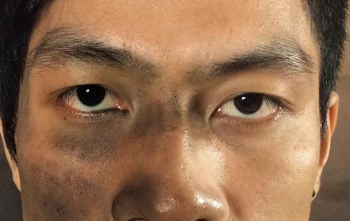 Đàn ông mắt to mắt nhỏ nói lên điều gì, đẹp hay xấu, khắc phục ra sao 4