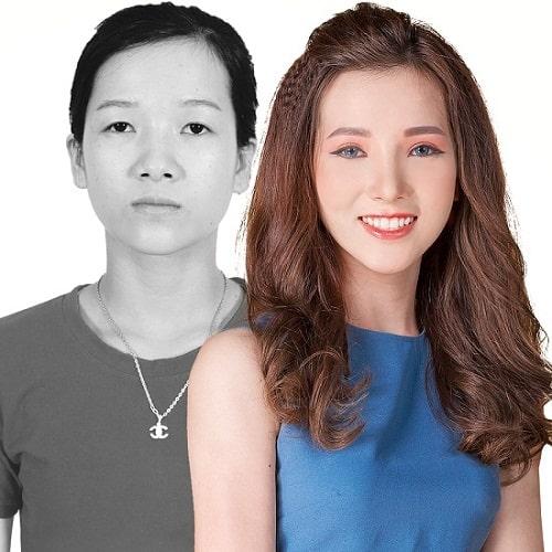 Cắt mí Eye Lift Hàn Quốc là gì? Vì sao lại khiến chị em MÊ MẨN đến thế 4
