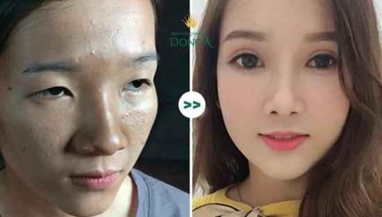 """""""Cô gái mắt lươn""""- Lương Thị Hà hành trình lột xác ngoạn mục thay đổi cuộc đời"""