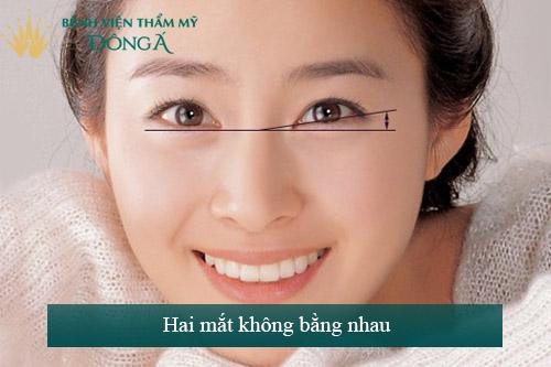 Hai mắt không bằng nhau - Dấu hiệu, nguyên nhân & Cách khắc phục 1