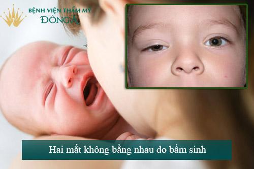 Hai mắt không bằng nhau - Dấu hiệu, nguyên nhân & Cách khắc phục 2