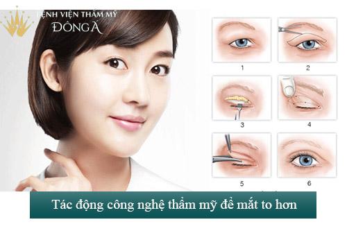 Hai mắt không bằng nhau - Dấu hiệu, nguyên nhân & Cách khắc phục 6