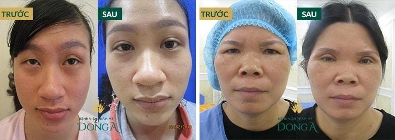CẬN CẢNH hình ảnh cắt mí mắt sau 1 tháng làm CHAO ĐẢO triệu con tim 5