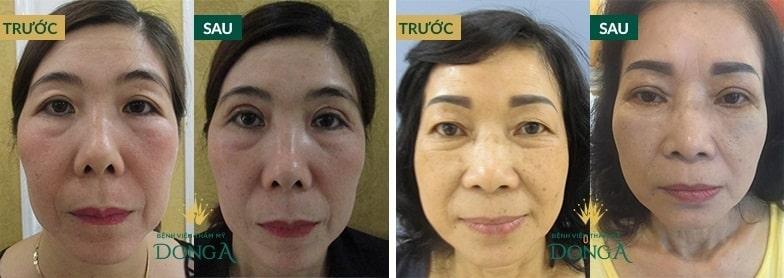 CẬN CẢNH hình ảnh cắt mí mắt sau 1 tháng làm CHAO ĐẢO triệu con tim 6