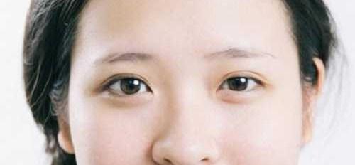 Làm thế nào để 2 mí mắt đều nhau - To Tròn & Cuốn Hút? Bác sĩ tư vấn 1