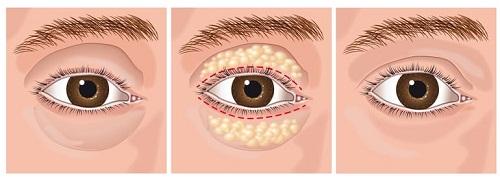 Lấy mỡ mắt chống sụp mí - 45p biến hóa cho đôi mắt tươi trẻ hết lờ đờ 1
