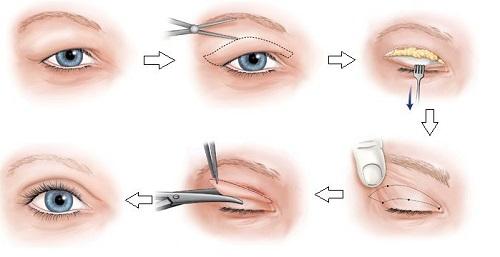 Lấy mỡ mắt chống sụp mí - 45p biến hóa cho đôi mắt tươi trẻ hết lờ đờ 5