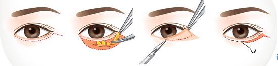 Lấy mỡ mí mắt dưới - Giải pháp hiện đại cho đôi mắt trẻ đẹp thanh xuân 3