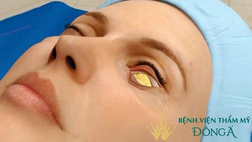 Lấy mỡ mí mắt: 8 điều QUAN TRỌNG phải biết trước & sau khi thực hiện 5