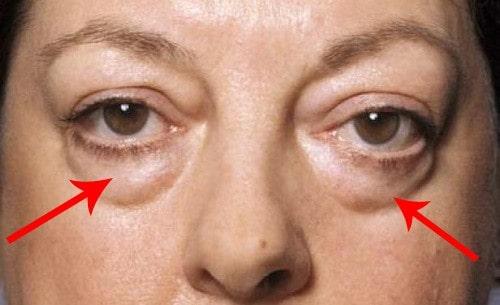 Lấy mỡ mí mắt giá bao nhiêu tiền để có đôi mắt Trẻ Đẹp? Bảng giá 2019 2