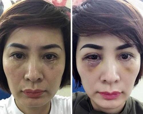 Lấy mỡ mí mắt có nguy hiểm không? 2 yếu tố CỐT LÕI đảm bảo an toàn 6