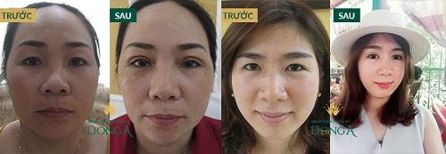 Lấy mỡ mắt không phẫu thuật THỰC HƯ về độ hiệu quả bạn đã biết? 7