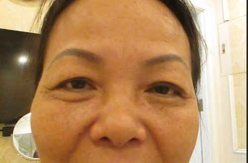 Lấy mỡ mí mắt trên cho đôi mắt TƯƠI TRẺ An Toàn - Hiệu Quả 99% 2