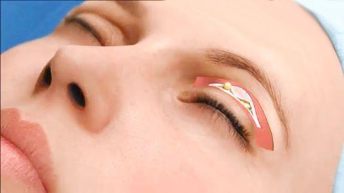 Lấy mỡ mí mắt trên có đau không? Chuyên gia thẩm mỹ mắt giải đáp 1