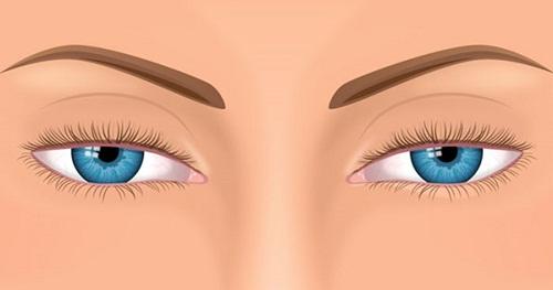 Mắt bị sụp mí sau khi ngủ dậy - Nguyên nhân & 6 Cách chữa Hiệu Quả 2