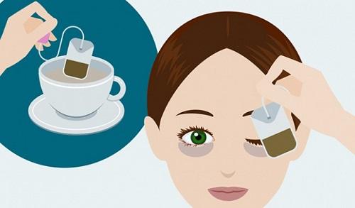 Mắt bị sụp mí sau khi ngủ dậy - Nguyên nhân & 6 Cách chữa Hiệu Quả 5